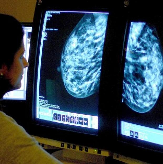 Halstead Gazette: Doctors should be able to give breast cancer sufferers a better prognosis using an improved test, experts say