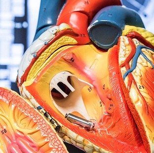 A pacemaker the size of a pill inside a model of the human heart (University Hospital Southampton NHS Foundation Trust/PA)