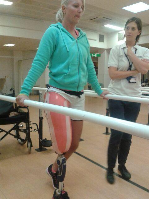 Brave Kerry is walking again after losing leg in horror crash